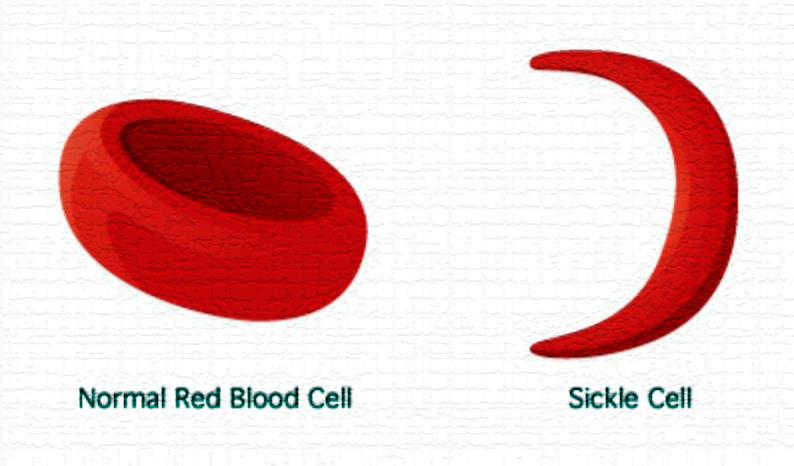 sickle-cell2