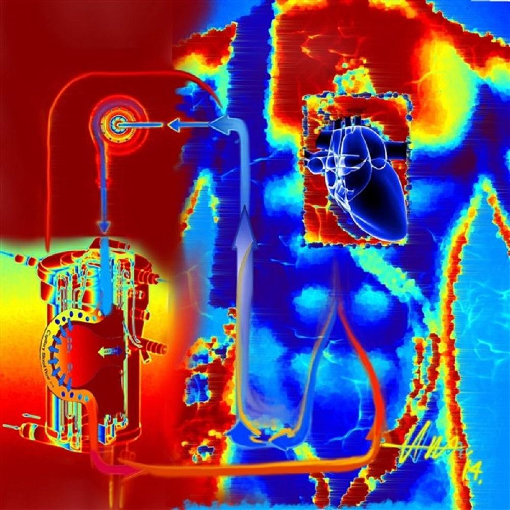 Artwork - Hot ECMO